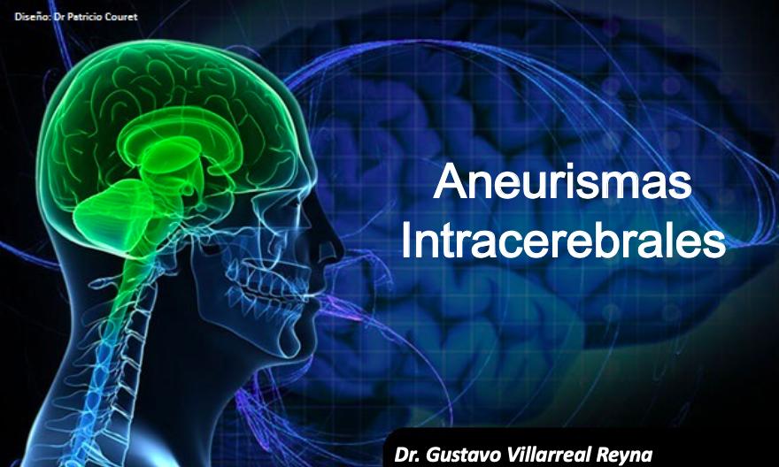 aneurismas-intracerebrales