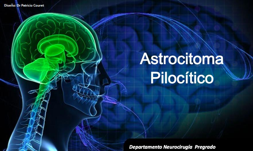 astrocitoma-pilocitico