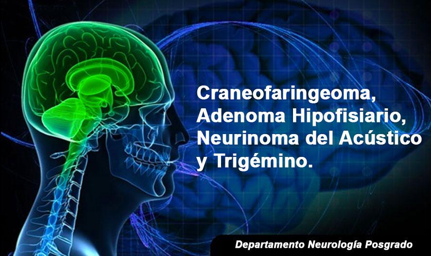 craneofaringeoma,-adenoma-hipofisiario,-neurinoma-del-acustico