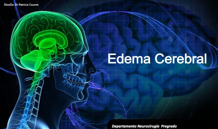 edema-cerebral