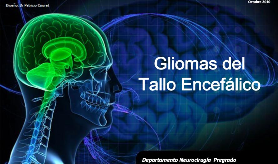 gliomas-tallo-encefalico