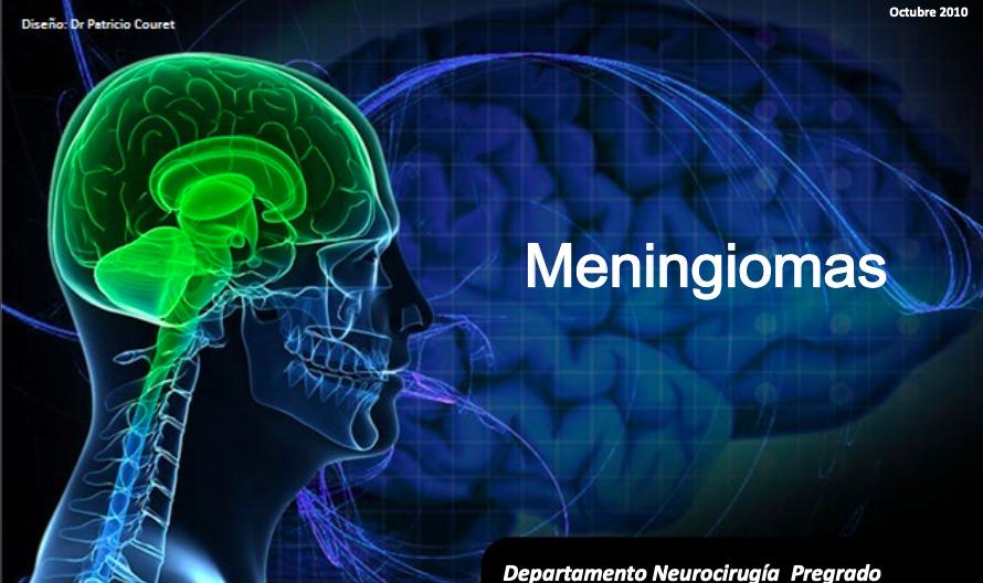 meningiomas