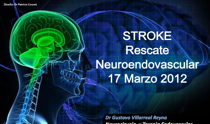 stroke-rescate-neuroendovascular