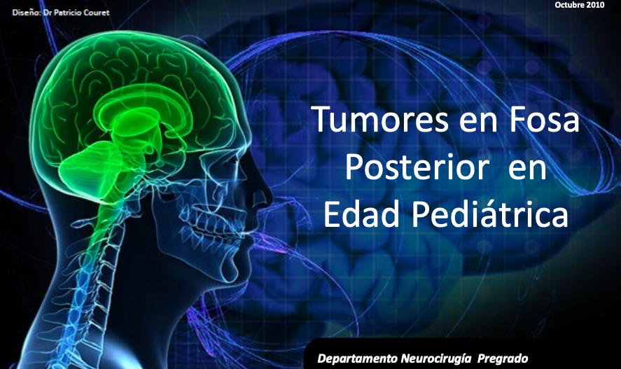 tumores-fosa-posterior